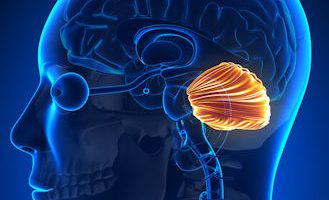 zona afectada principalmente por la ataxia cerebelosa