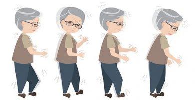 Enfermedad que afecta los movimientos coordinados de los musculos